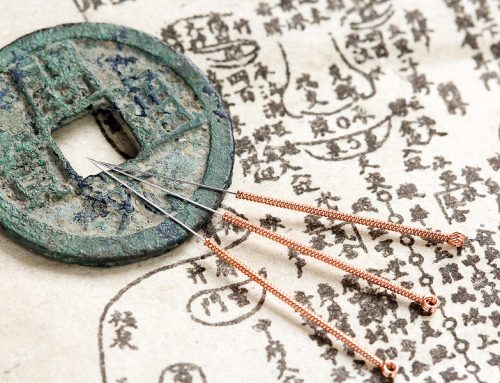 Some Of The Many Workplace Benefits Of Using Acupuncture In Toowoomba