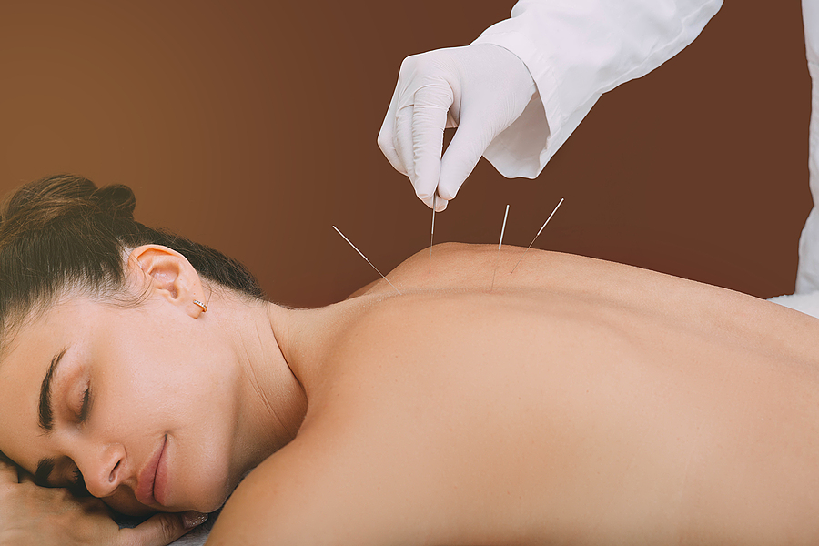 Woman getting acupuncture treatment in Toowoomba